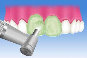 歯のクリーニングについて