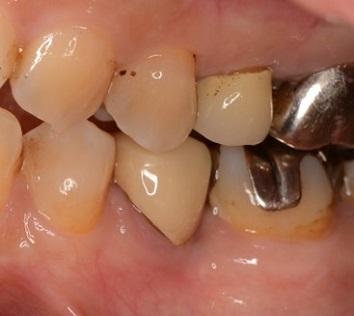 エムドゲインを用いた歯周組織再生療法の症例