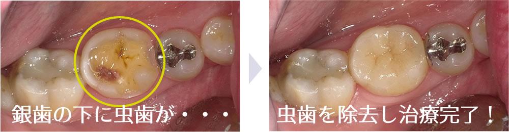 銀歯の下の虫歯
