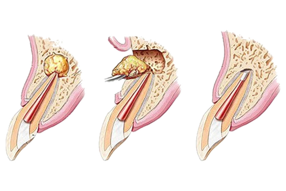 歯根端切除術・再植術