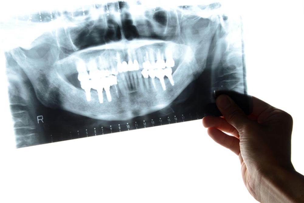 日本歯科口腔外科認定医